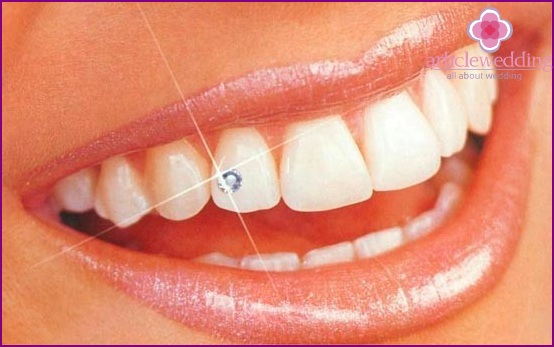 Jewelry for teeth
